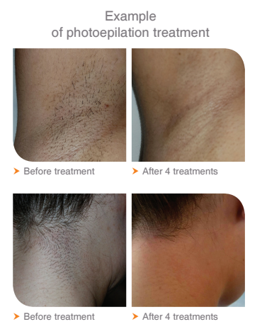 IPL Hair Removal Before & After